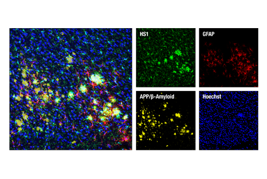 Image 14: Mouse Microglia Marker IF Antibody Sampler Kit