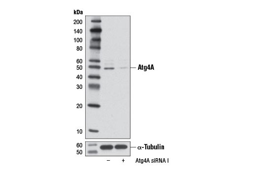 Image 10: Autophagy Vesicle Elongation (LC3 Conjugation) Antibody Sampler Kit
