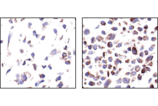 Image 12: Pim Kinase Antibody Sampler Kit