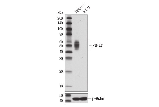 Western Blotting Image 1: PD-L2 (D7U8C™) XP® Rabbit mAb