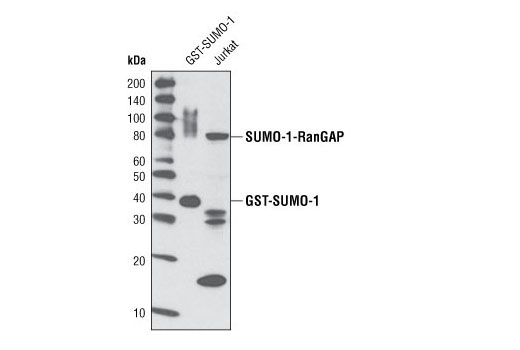 Image 4: Huntingtin Interaction Antibody Sampler Kit