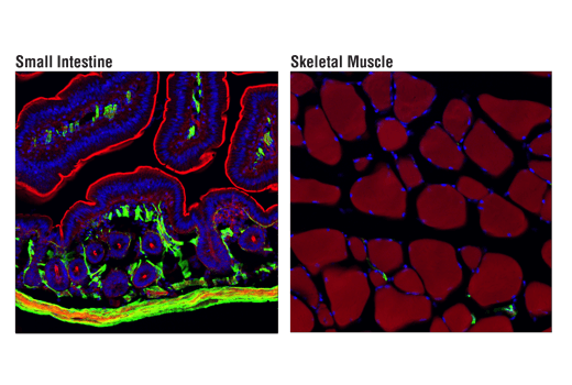 Image 2: Cancer Associated Fibroblast Marker Antibody Sampler Kit
