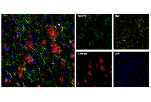 Image 12: Mouse Microglia Marker IF Antibody Sampler Kit